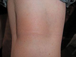 skin rash cure