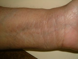 eczema wrist cure