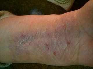 wrist eczema