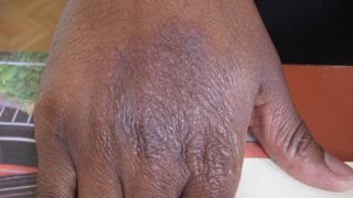 Shingles Pictures: Shingles Rash, Other Symptoms of ...