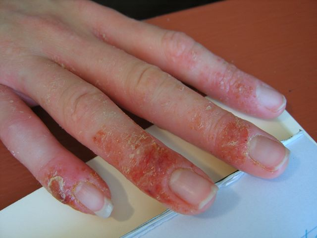 eczema hands blisters - photo #2