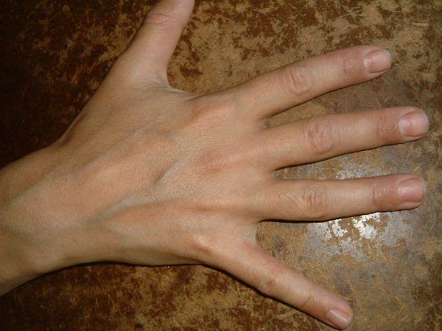 eczema hand cure