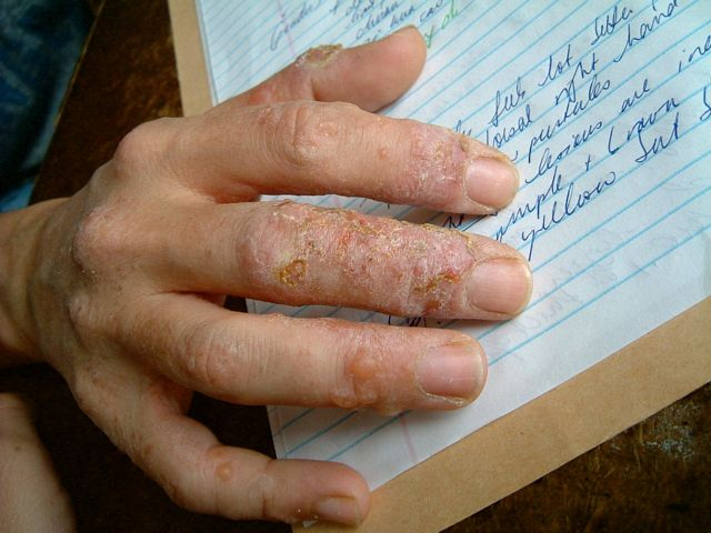 eczema hands blisters - photo #21