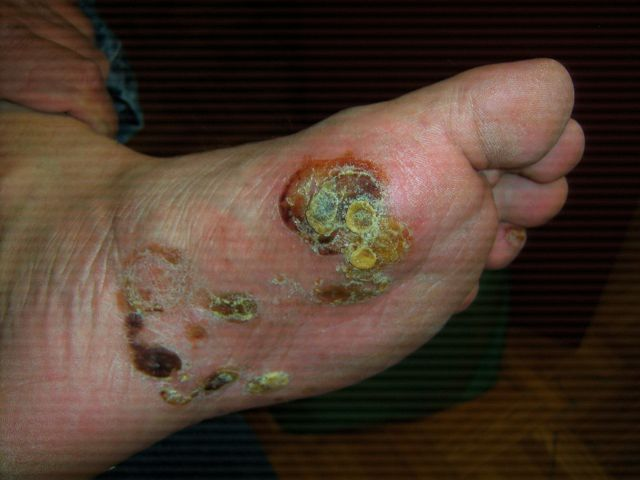 infected eczema on feet before