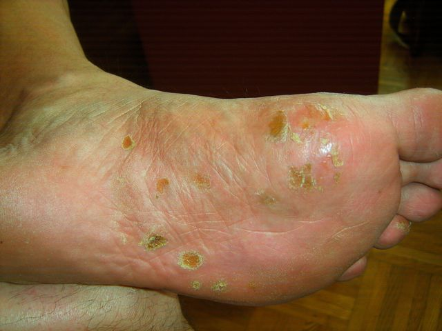 picture of blisters on feet