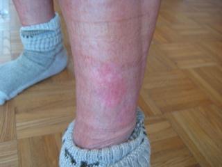 skin treatment psoriasis photo