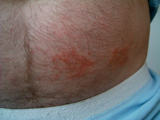numular eczema on the abdomen before treatment