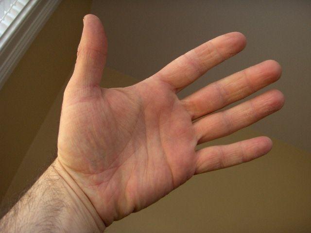 hand eczema cured