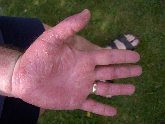 hand eczema picture