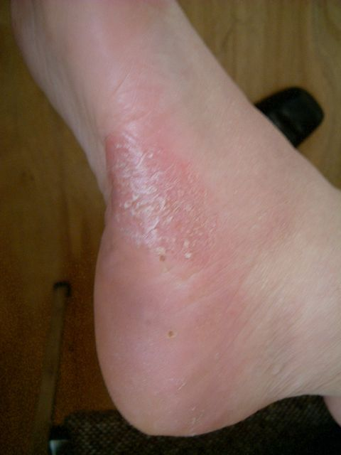 picture of pustular psoriasis on feet after