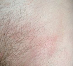 psoriasis photo in groin, after
