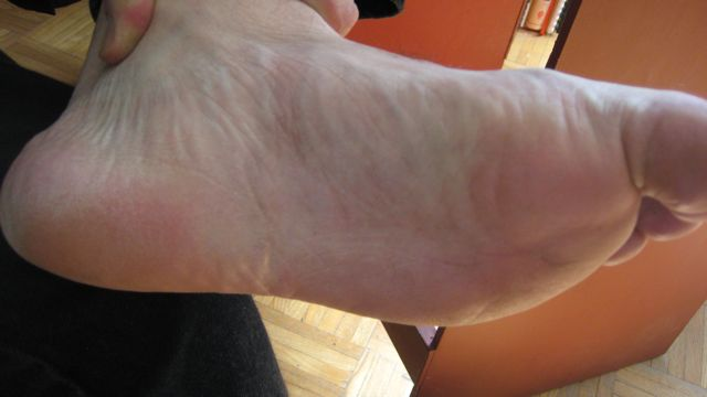 cure for blisters on feet