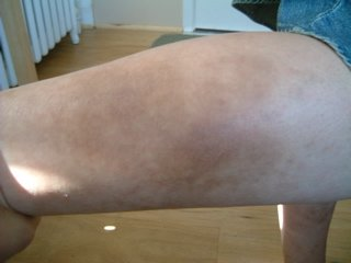 photo of nummular eczema after herbal treatment