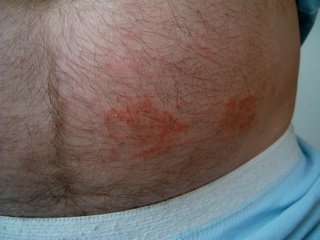 numular eczema on the abdomen before treatment