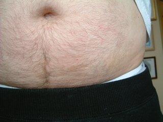 numular eczema after herbal treatment