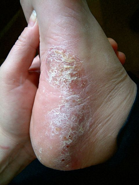picture of feet psoriasis before